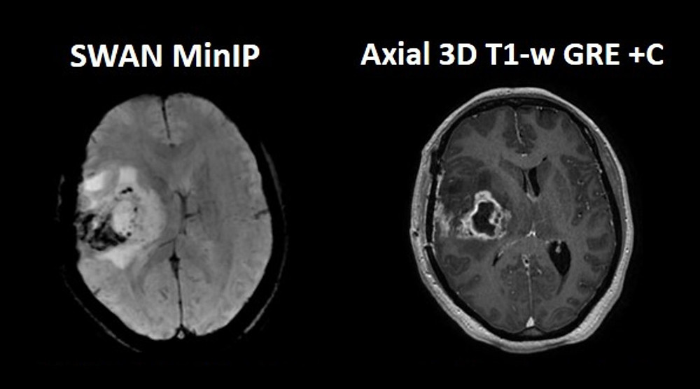 Fig. 4 illustrates a patient with glioblastoma multiforme (GBM) grade IV. Post-contrast 3D T1-w GRE shows contrast uptake, while SWI/SWAN detects the tumour vasculature and micro-hemorrhages