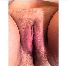 labiaplasty after 4 weeks