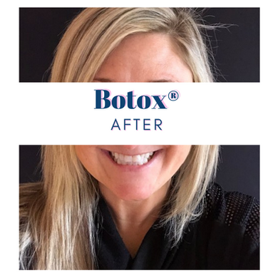 Botox® After