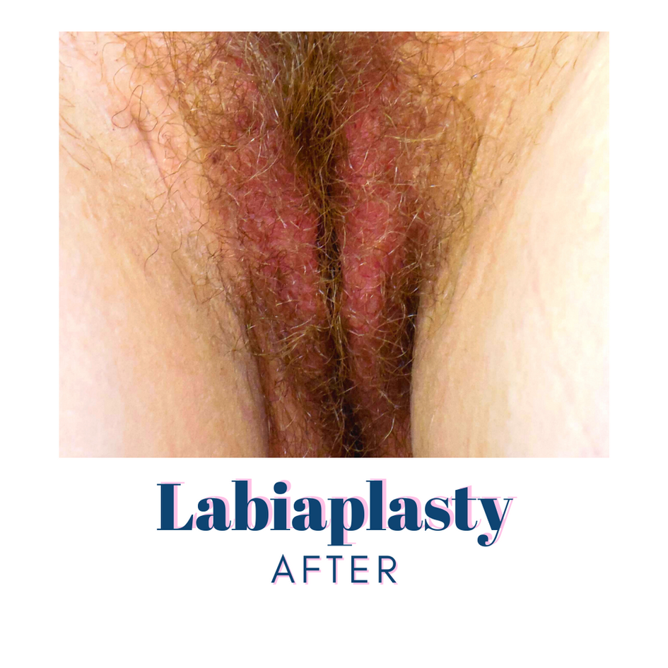 Labiaplasty - After