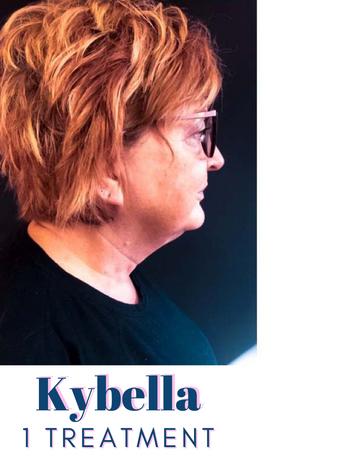 Kybella After