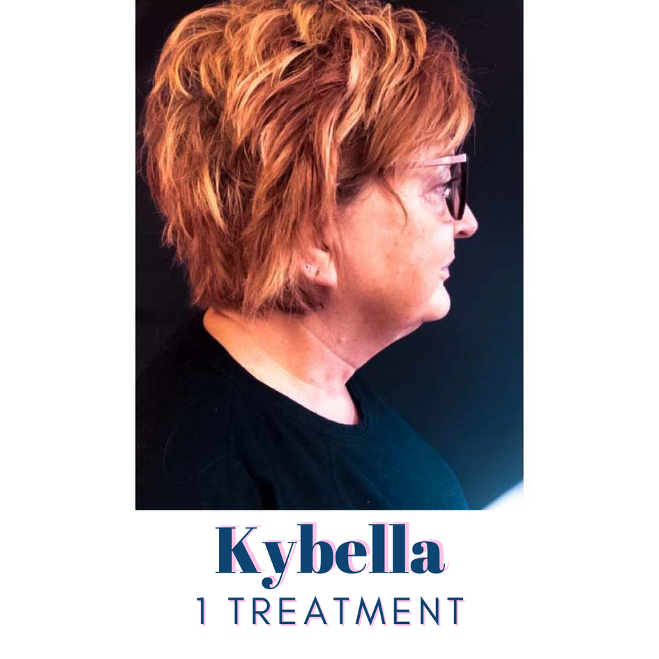 Kybella After 1 Treatment