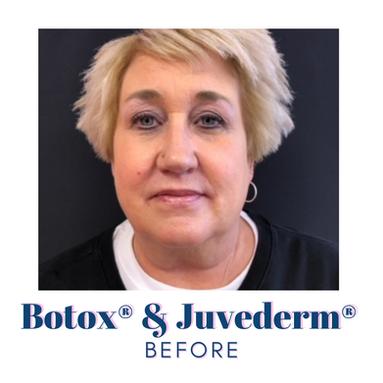 Botox & Juvederm - before