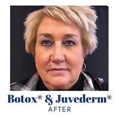 Botox3 after.png