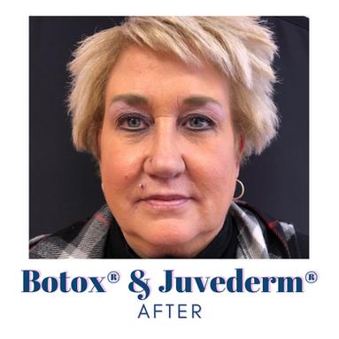 Botox & Juvederm - After