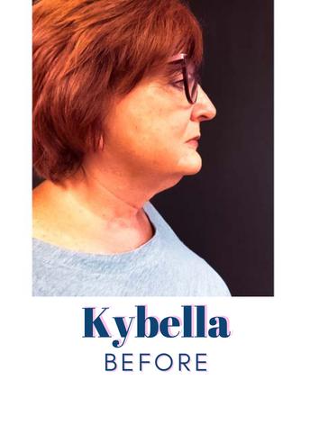 Kybella Before