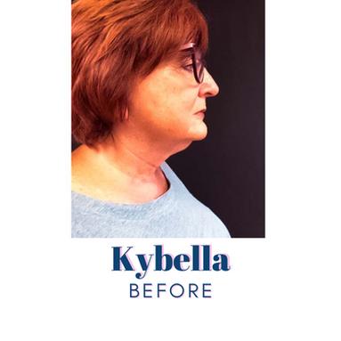 Kybella - Before