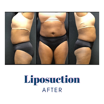 Liposuction After2.png