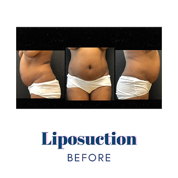 Liposuction  Before2.png