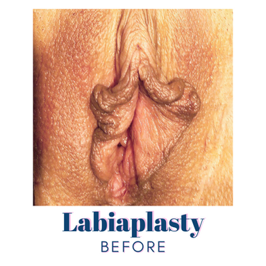 Labiaplasty - Before