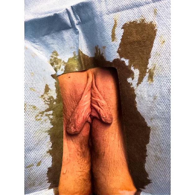 labiaplasty before