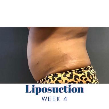Liposuction Week 4