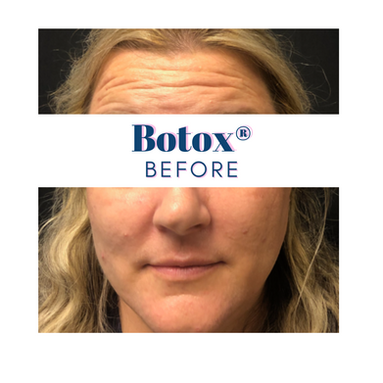 Botox® Before