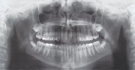 OPT detn sagesse extraction avulsion orthognatique osteotomie mandibule strasbourg barriere
