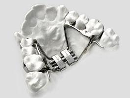 maxillo barriere strasbourg endomaxillie palais etroit correctio chirurgie