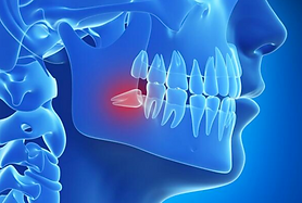 sagesse incluse dent extraction avulsion anesthéise générale strasbourg rhena