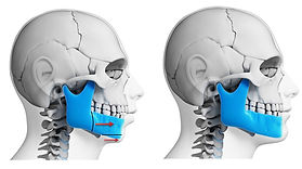 orthognatique strasbourg maxillo osteotomie maxillair mandibule lefort epker chirurgie barriere