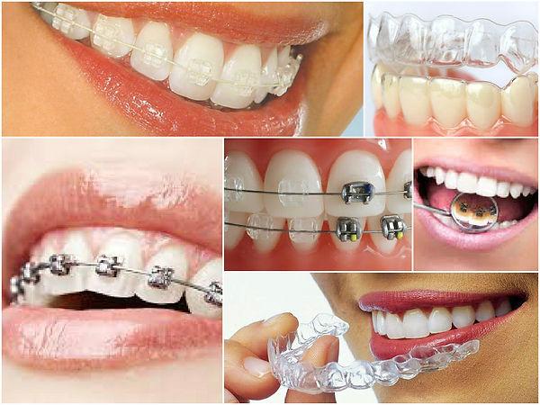 ortodontoloji