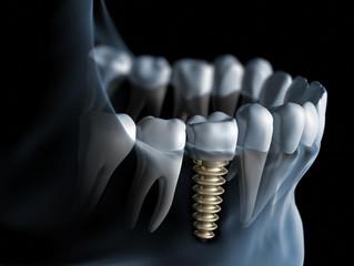 Имплантация зубов. Что это?