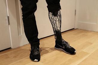 protesis-pierna.jpg