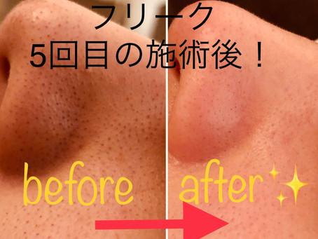 小鼻の毛穴…お悩みではないですか⁈