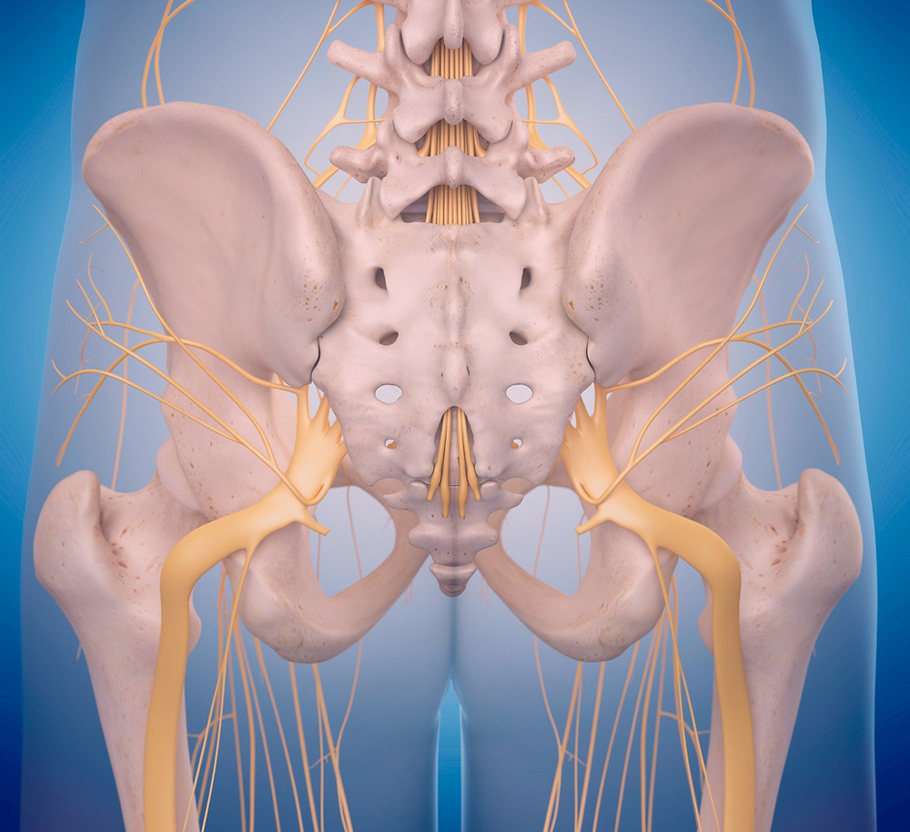 Sciatica - Symptoms and causes - Mayo Clinic