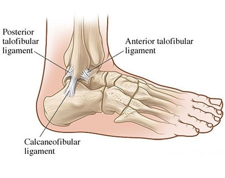Ankle sprains - Assessment and Treatment