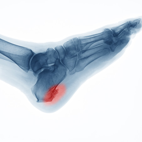 Plantar Fasciitis, Heel Spurs and Cortisone Injections