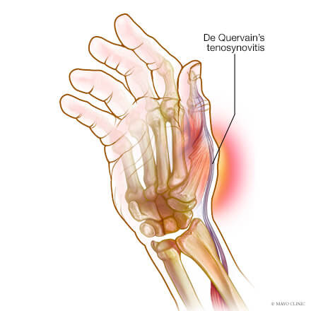 Thumb/Wrist Pain? It could be De Quervain's Tenosynovitis.