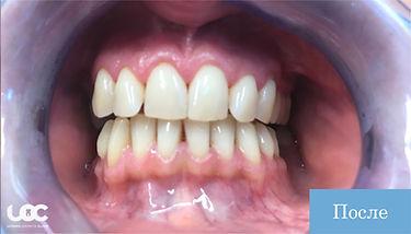 parodontite-laser-dopo-01-01.jpg