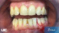 parodontite-laser-prima.jpg