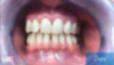 parodontite-laser-dopo.jpg