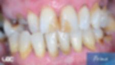 parodontite-laser-2-prima.jpg