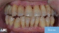 igiene-dentale-laser-dopo-01.jpg