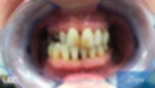 parodontite-laser-2-dopo.jpg