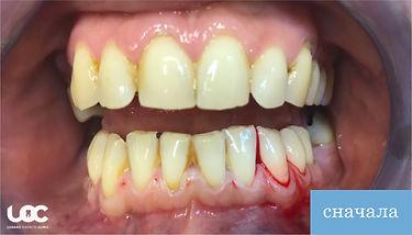 parodontite-laser-prima-01.jpg