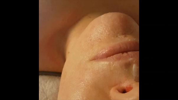 NBE 1000-ansiktsbehandling av LENAre HUD i Köping