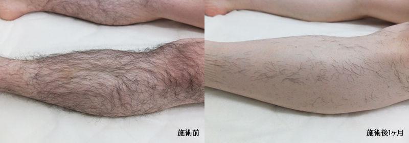 札幌 北区 麻生 セルフホワイトニング メンズ脱毛(ヒゲ脱毛・全身脱毛・vio) BLOW(ブロウ) すね毛 足 ビフォーアフター 効果 痛くない