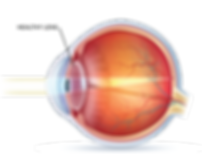 lens w_out cataracts.png