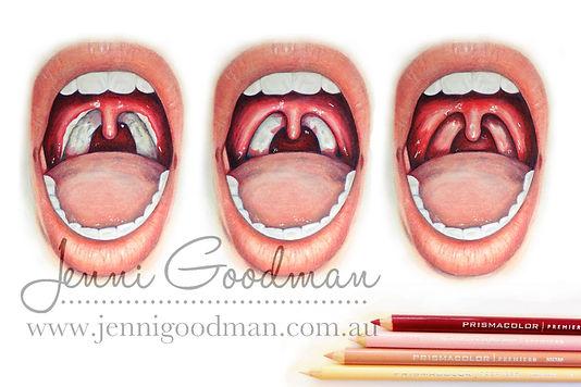 tonsils-watermarked.jpg