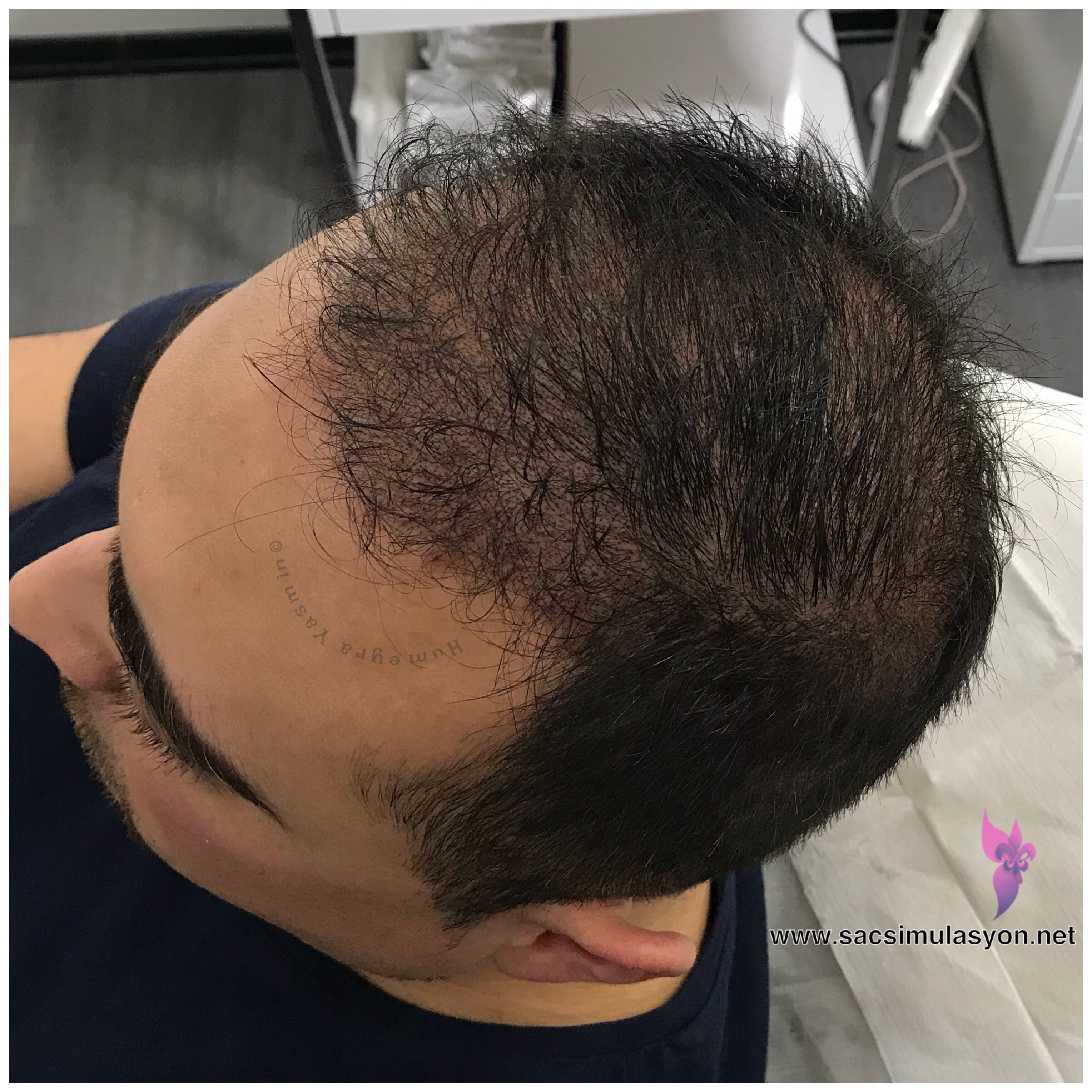 Saç Simulasyon Uygulamamız