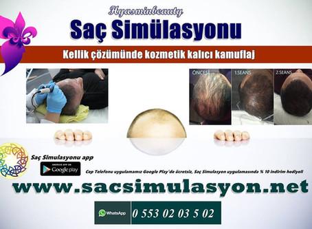 Saç Simülasyonu ile kellik sorununa kalıcı kozmetik kamuflaj
