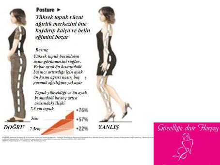Yüksek topuklu ayakkabı Bel ve Sırt ağrısı yapabilir