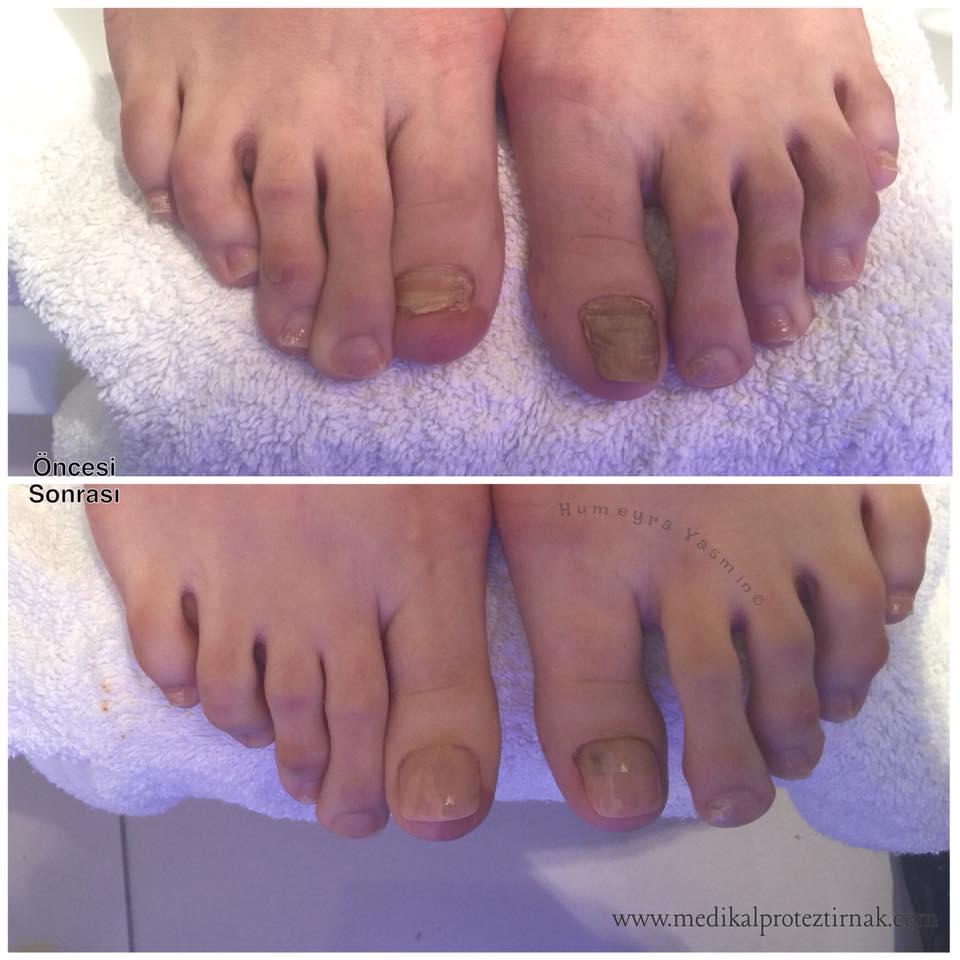 Ayak Protez Tırnak Uygulamamız