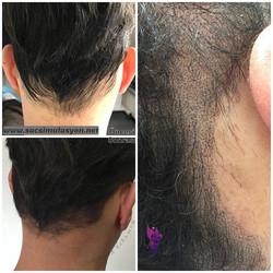 Saç Simulasyonu Uygulamamız