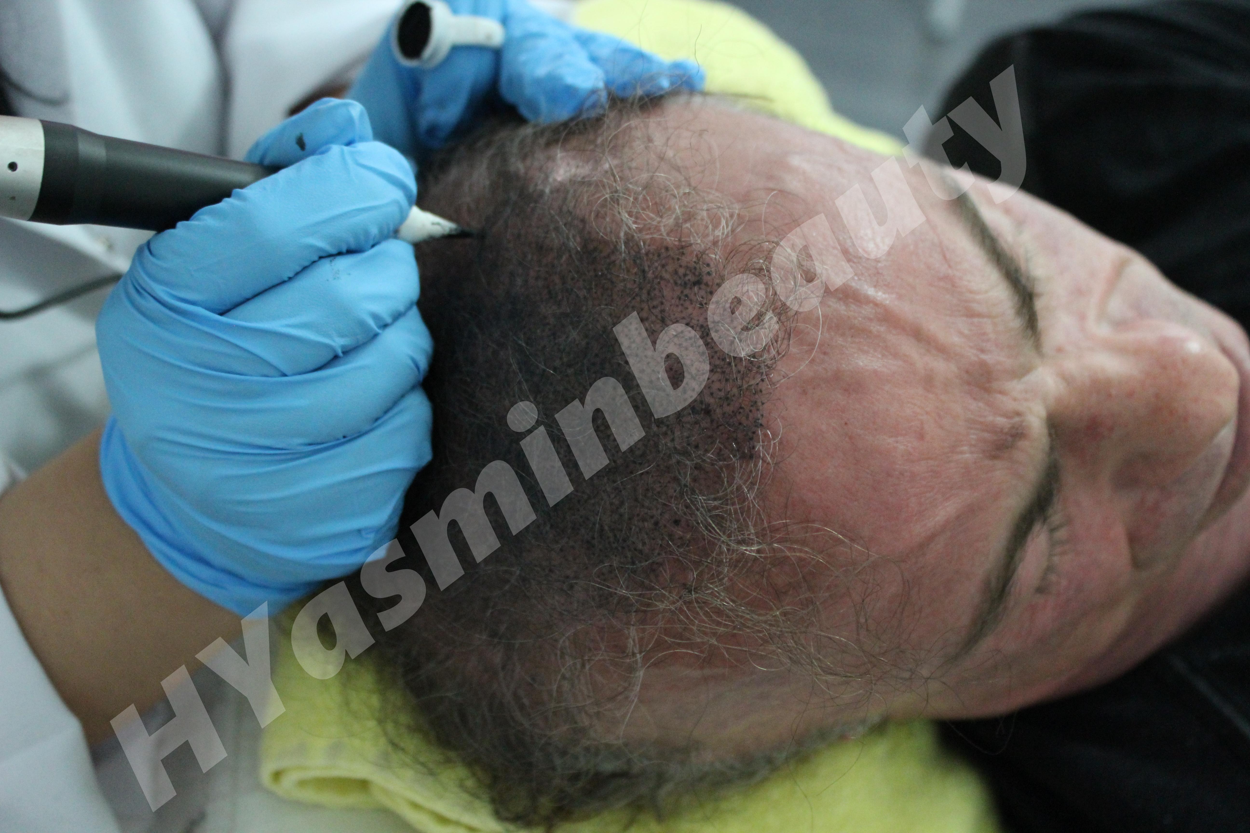 Saç Simulasyonu