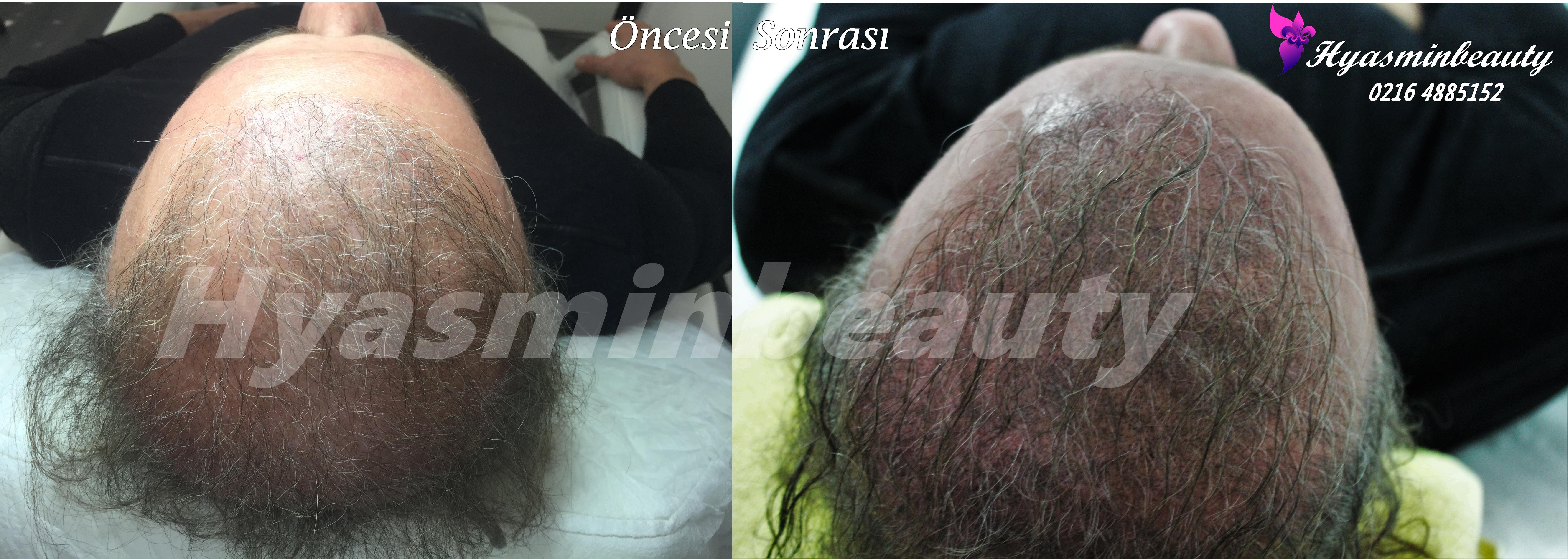 süper saç simülasyonu.JPG