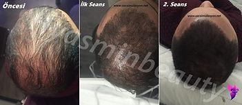 2 Kez Saç Ekimi uygulanmış örnekte boşlıkların Saç Simülasyonu ile kamuflajı ilk 2 seans sonucu