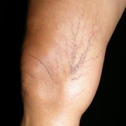 Bacaklarınızda varis görüntülerinden kurtulmanın pratik yolu