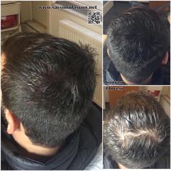 Saç Simülasyonu Uygulamamız